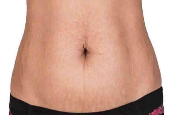 Como evitar o esticamento da pele?