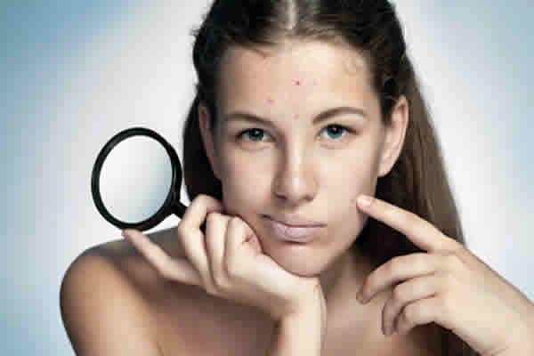 Na gestação aumenta as espinhas na pele?