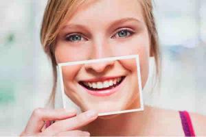 Plano odontológico cobre o clareamento dos dentes?