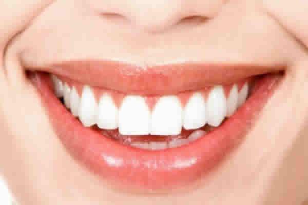Preciso cuidar do meu sorriso, devo começar pelo plano dental?